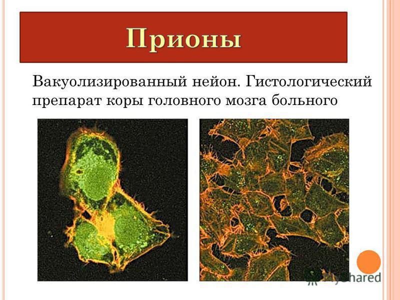 Вакуолизированный нейлон. Гистологический препарат коры головного мозга больного