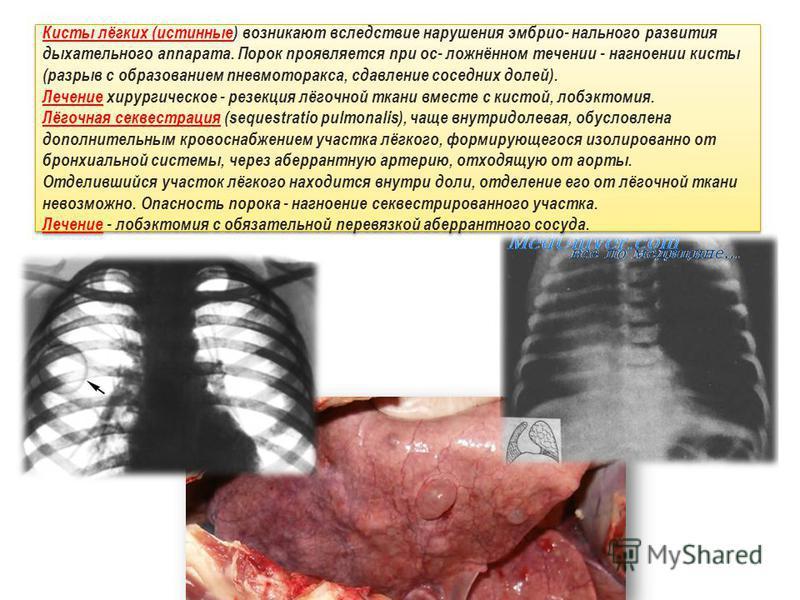 Кисты лёгких (истинные) возникают вследствие нарушения эмбрионального развития дыхательного аппарата. Порок проявляется при ос- ложнённом течении - нагноении кисты (разрыв с образованием пневмоторакса, сдавление соседних долей). Лечение хирургическое