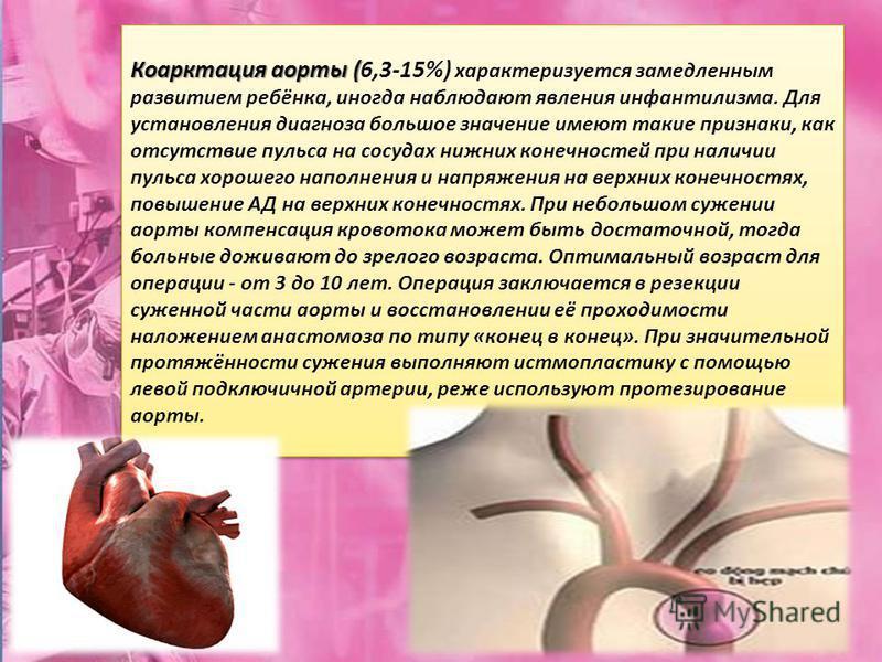Коарктация аорты ( Коарктация аорты (6,3-15%) характеризуется замедленным развитием ребёнка, иногда наблюдают явления инфантилизма. Для установления диагноза большое значение имеют такие признаки, как отсутствие пульса на сосудах нижних конечностей п