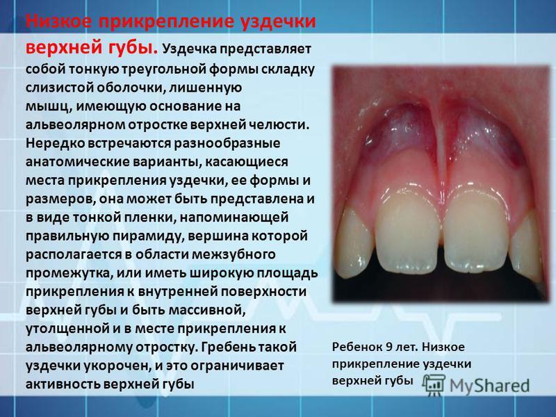 Низкое прикрепление уздечки верхней губы. Уздечка представляет собой тонкую треугольной формы складку слизистой оболочки, лишенную мышц, имеющую основание на альвеолярном отростке верхней челюсти. Нередко встречаются разнообразные анатомические вариа