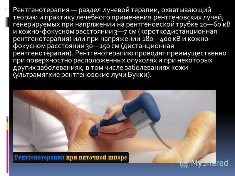 Рентгенотерапия раздел лучевой терапии, охватывающий теорию и практику лечебного применения рентгеновских лучей, генерируемых при напряжении на рентгеновской трубке 2060 кВ и кожно-фокусном расстоянии 37 см (короткодистанционная рентгенотерапия) или