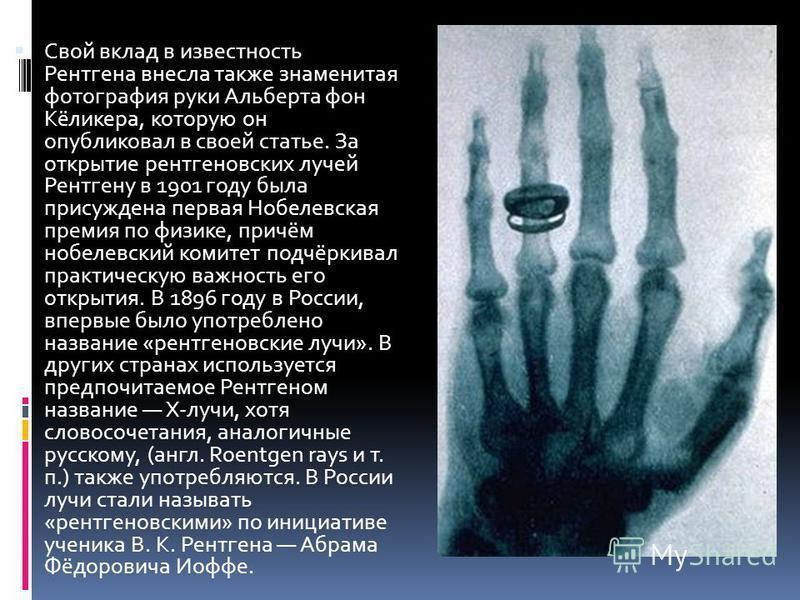 Свой вклад в известность Рентгена внесла также знаменитая фотография руки Альберта фон Кёликера, которую он опубликовал в своей статье. За открытие рентгеновских лучей Рентгену в 1901 году была присуждена первая Нобелевская премия по физике, причём н