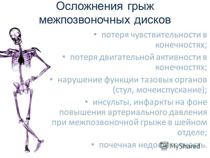 Осложнения грыж межпозвоночных дисков потеря чувствительности в конечностях; потеря двигательной активности в конечностях; нарушение функции тазовых органов (стул, мочеиспускание); инсульты, инфаркты на фоне повышения артериального давления при межпо