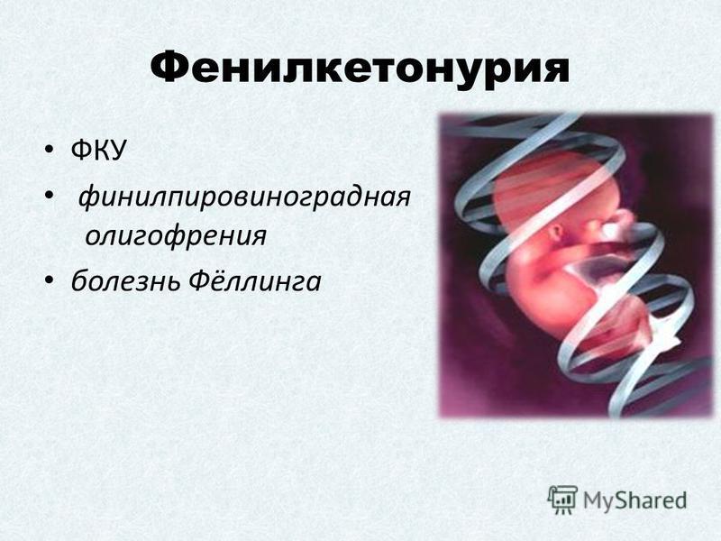 Фенилкетонурия ФКУ фенилпировиноградная олигофрения болезнь Фёллинга