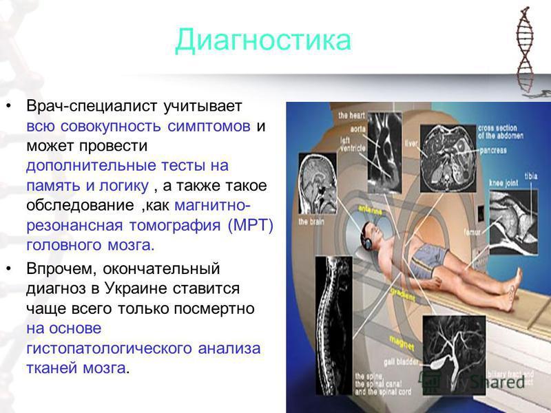 Диагностика Врач-специалист учитывает всю совокупность симптомов и может провести дополнительные тесты на память и логику, а также такое обследование,как магнитно- резонансная томография (МРТ) головного мозга. Впрочем, окончательный диагноз в Украине