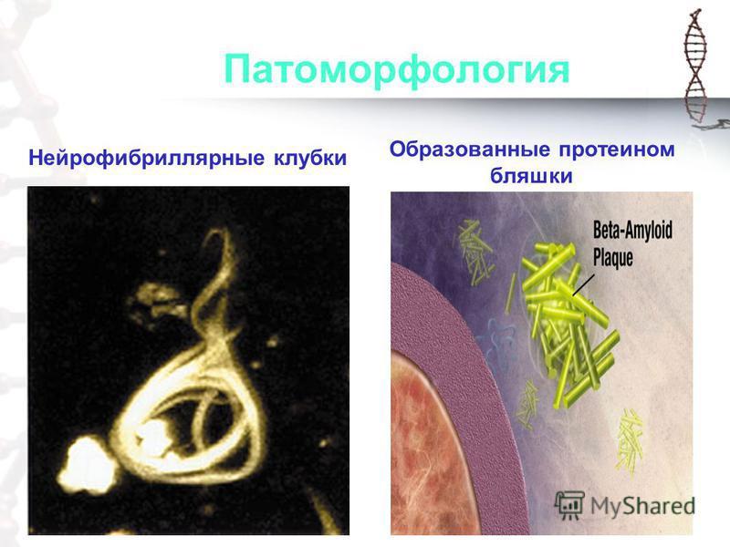 Патоморфология Нейрофибриллярные клубки Образованные протеином бляшки