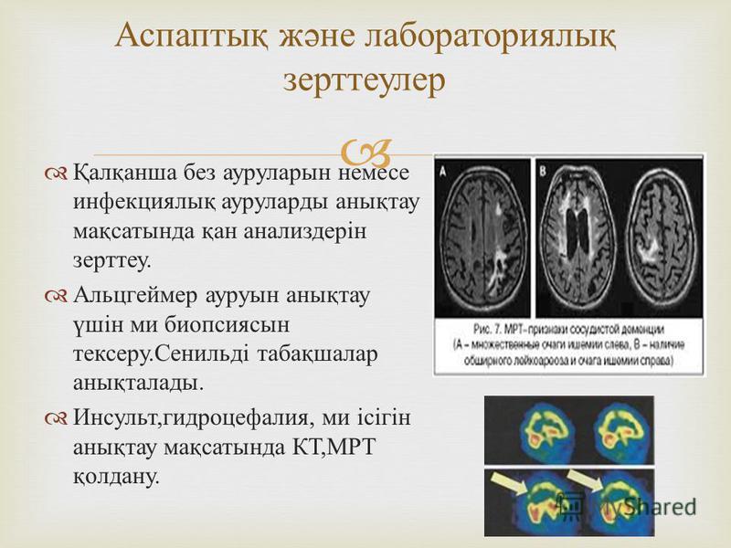 Қалқанша без ауруларын немесе инфекциялық ауруларды анықтау мақсатында қан анализдерін зерттеу. Альцгеймер ауруын анықтау үшін ми биопсиясын тексеру. Сенильді табақшалар анықталады. Инсульт, гидроцефалия, ми ісігін анықтау мақсатында КТ, МРТ қолдану.
