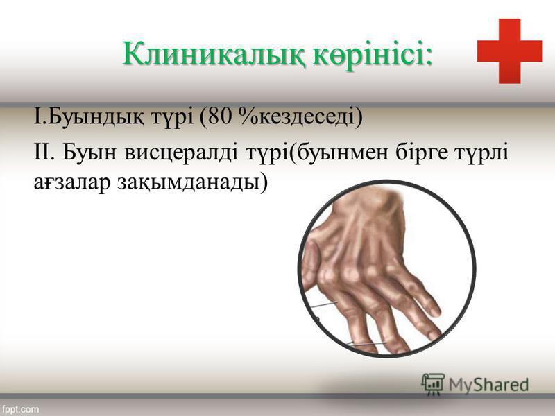Клиникалық көрінісі: І.Буындық түрі (80 %кездеседі) ІІ. Буын висцералді түрі(буынмен бірге түрлі ағзалар зақымданады)