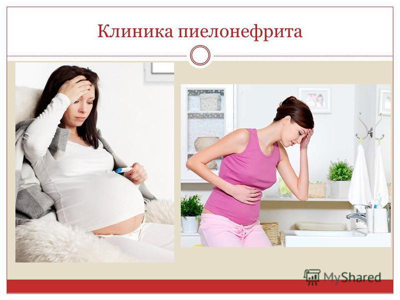 Пиелонефрит у беременной симптомы и лечение 41