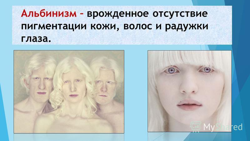 Альбинизм – врожденное отсутствие пигментации кожи, волос и радужки глаза.