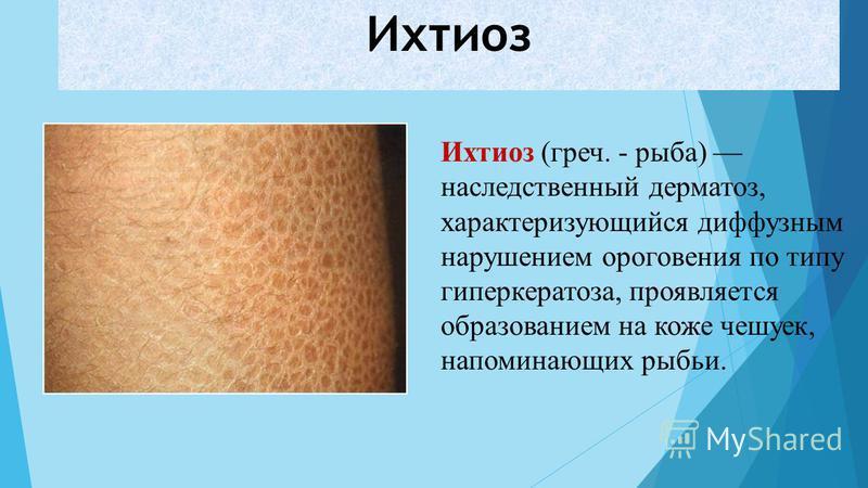 Ихтиоз Ихтиоз (греч. - рыба) наследственный дерматоз, характеризующийся диффузным нарушением ороговения по типу гиперкератоза, проявляется образованием на коже чешуек, напоминающих рыбьи.