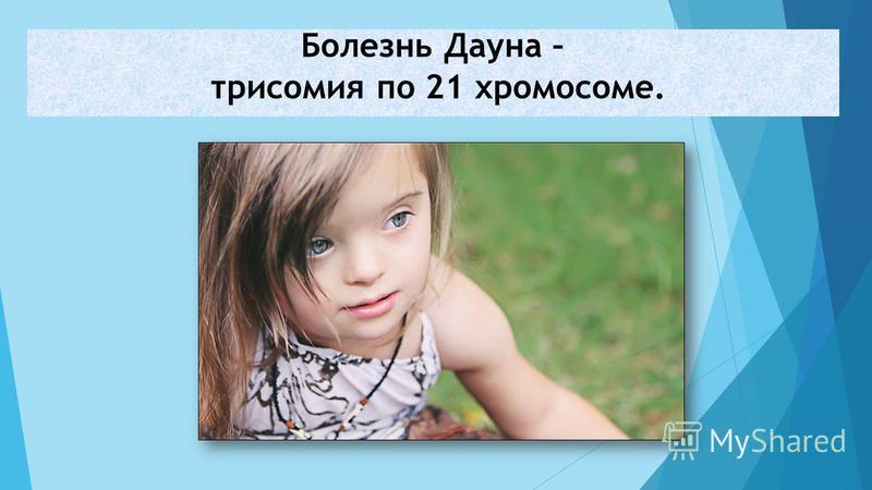Болезнь Дауна – трисомия по 21 хромосоме.