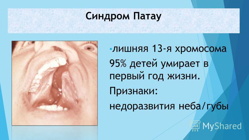 лишняя 13-я хромосома 95% детей умирает в первый год жизни. Признаки: недоразвития неба/губы Синдром Патау