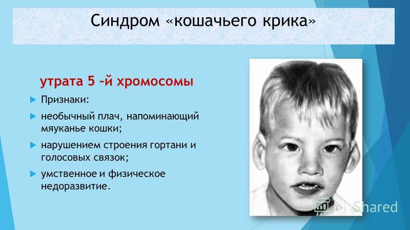 утрата 5 –й хромосомы Признаки: необычный плач, напоминающий мяуканье кошки; нарушением строения гортани и голосовых связок; умственное и физическое недоразвитие. Синдром «кошачьего крика»