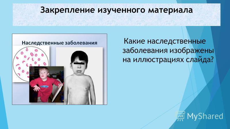 Закрепление изученного материала Какие наследственные заболевания изображены на иллюстрациях слайда?