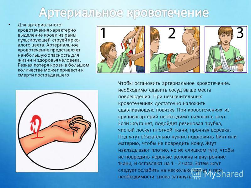 Для артериального кровотечения характерно выделение крови из раны пульсирующей струей ярко- алого цвета. Артериальное кровотечение представляет наибольшую опасность для жизни и здоровья человека. Резкая потеря крови в большом количестве может привест