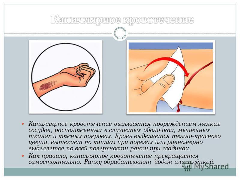 Капиллярное кровотечение вызывается повреждением мелких сосудов, расположенных в слизистых оболочках, мышечных тканях и кожных покровах. Кровь выделяется темно-красного цвета, вытекает по каплям при порезах или равномерно выделяется по всей поверхнос