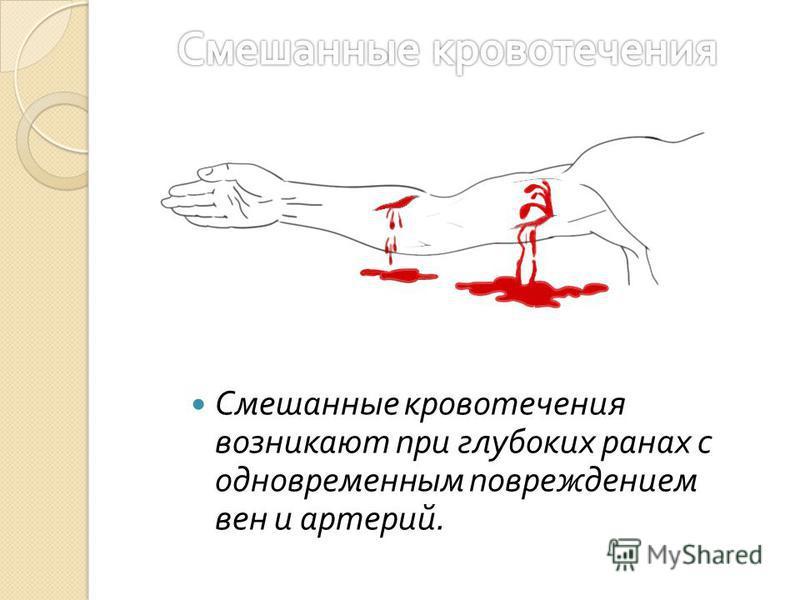 Смешанные кровотечения возникают при глубоких ранах с одновременным повреждением вен и артерий.