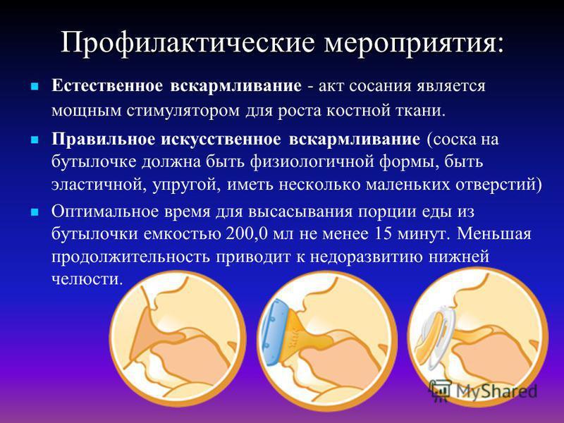 Профилактические мероприятия: - Естественное вскармливание - акт сосания является мощным стимулятором для роста костной ткани. Правильное искусственное вскармливание (соска на бутылочке должна быть физиологичной формы, быть эластичной, упругой, иметь
