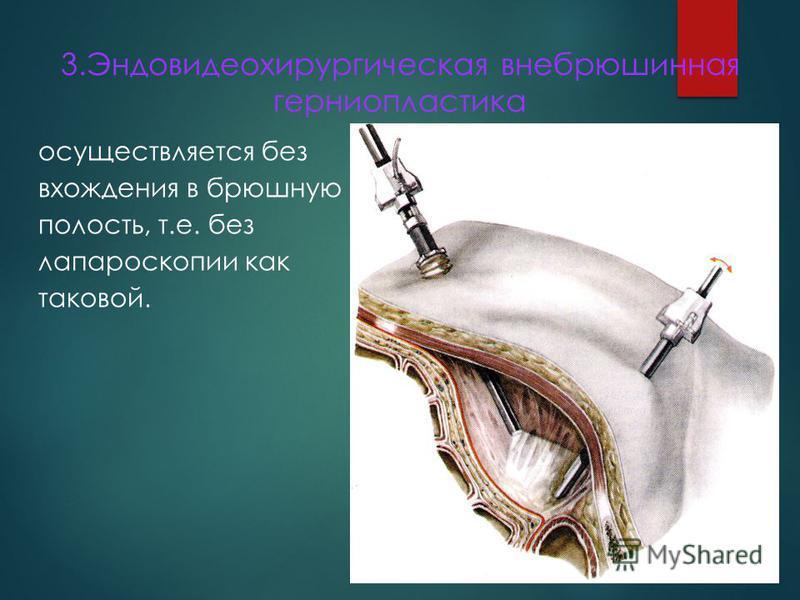 3. Эндовидеохирургическая внебрюшинная герниопластика осуществляется без вхождения в брюшную полость, т.е. без лапароскопии как таковой.