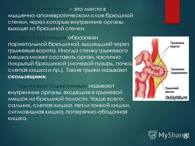 Грыжевые ворота – это место в мышечно-апоневротическом слое брюшной стенки, через которые внутренние органы выходят из брюшной стенки. Грыжевой мешок образован париетальной брюшиной, вышедшей через грыжевые ворота. Иногда стенку грыжевого мешка может