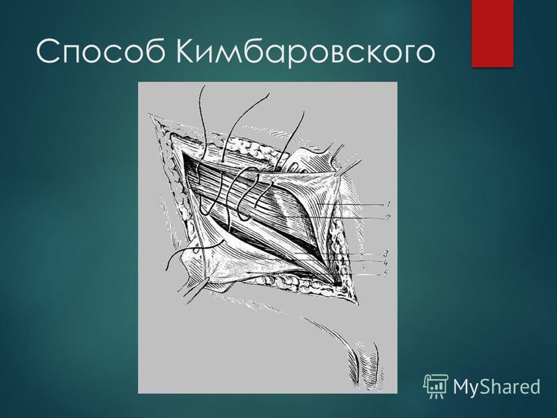Способ Кимбаровского