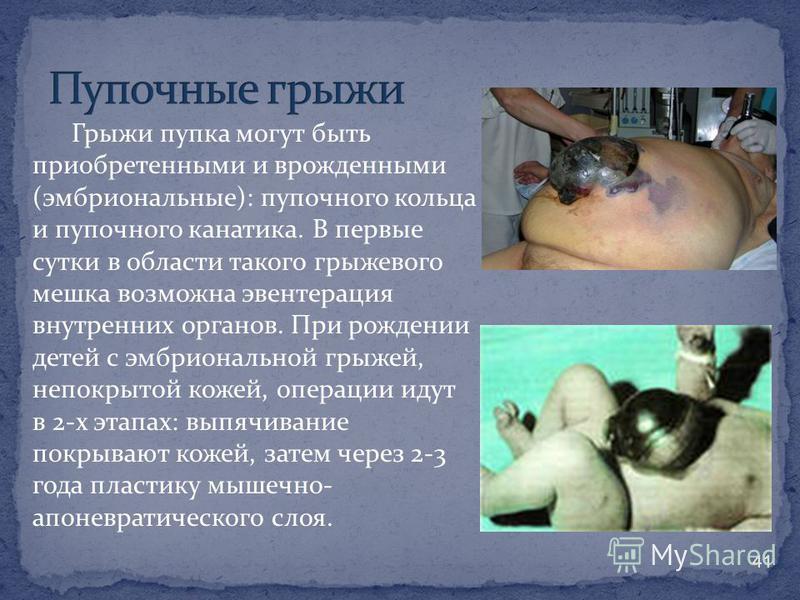 Грыжи пупка могут быть приобретенными и врожденными (эмбриональные): пупочного кольца и пупочного канатика. В первые сутки в области такого грыжевого мешка возможна эвентерация внутренних органов. При рождении детей с эмбриональной грыжей, непокрытой