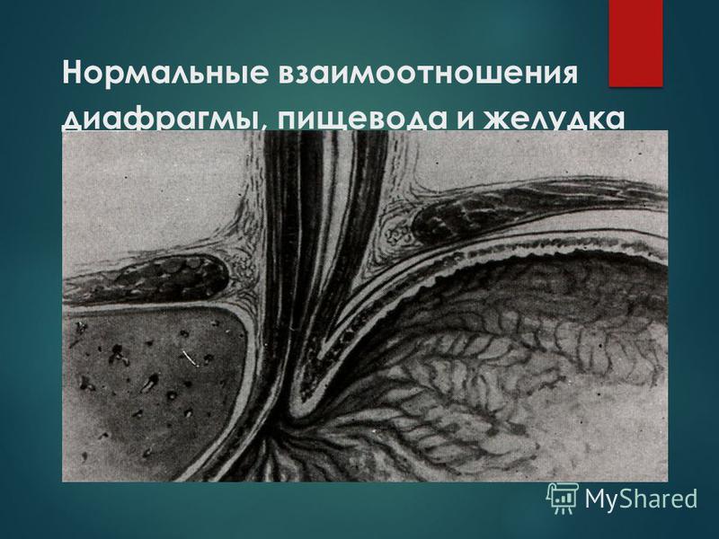 Нормальные взаимоотношения диафрагмы, пищевода и желудка