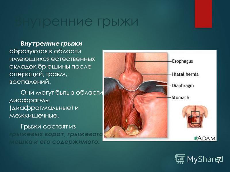 Внутренние грыжи образуются в области имеющихся естественных складок брюшины после операций, травм, воспалений. Они могут быть в области диафрагмы (диафрагмальные) и межкишечные. Грыжи состоят из грыжевых ворот, грыжевого мешка и его содержимого. Вну