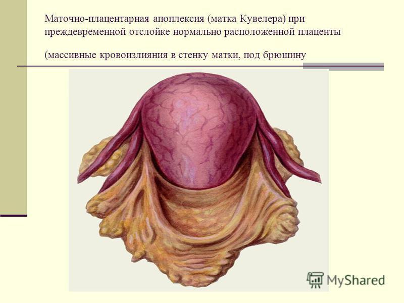 Маточно-плацентарная апоплексия (матка Кувелера) при преждевременной отслойке нормально расположенной плаценты (массивные кровоизлияния в стенку матки, под брюшину