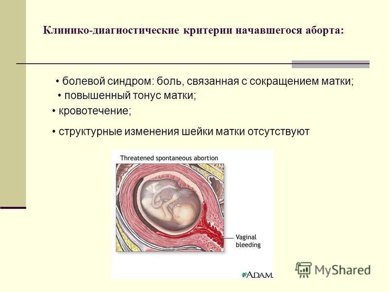 Клинико-диагностические критерии начавшегося аборта: болевой синдром: боль, связанная с сокращением матки; повышенный тонус матки; кровотечение; структурные изменения шейки матки отсутствуют