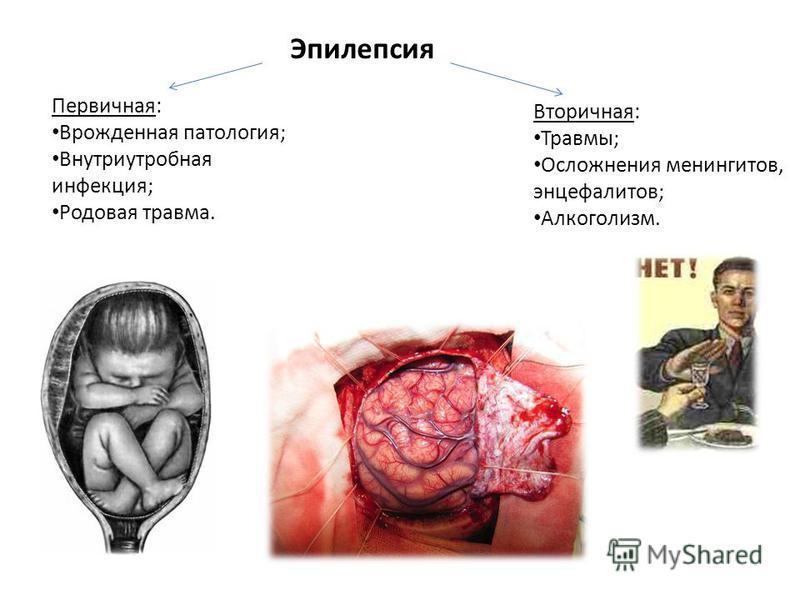 Эпилепсия Первичная: Врожденная патология; Внутриутробная инфекция; Родовая травма. Вторичная: Травмы; Осложнения менингитов, энцефалитов; Алкоголизм.
