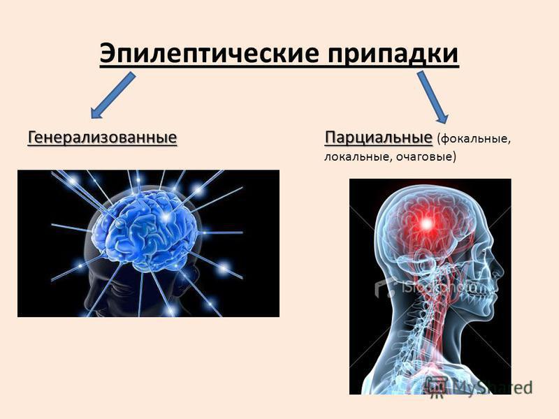Эпилептические припадки Генерализованные Парциальные Парциальные (фокальные, локальные, очаговые)