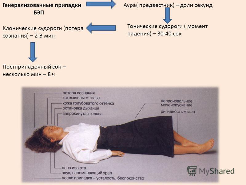 Постприпадочный сон – несколько мин – 8 ч Аура( предвестник) – доли секунд Тонические судороги ( момент падения) – 30-40 сек Клонические судороги (потеря сознания) – 2-3 мин Генерализованные припадки БЭП