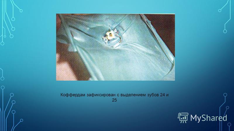 Коффердам зафиксирован с выделением зубов 24 и 25