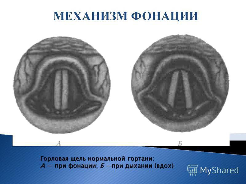 МЕХАНИЗМ ФОНАЦИИ Горловая щель нормальной гортани: А при фонации; Б при дыхании (вдох)