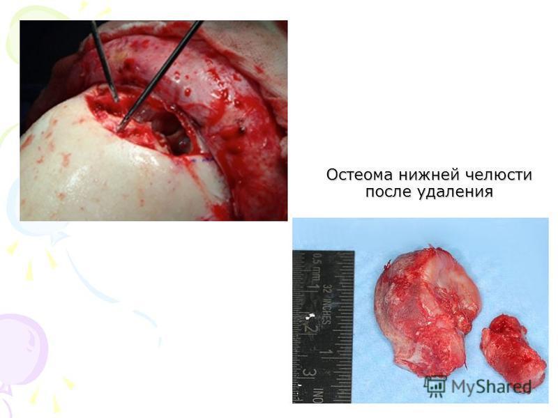 Остеома нижней челюсти после удаления