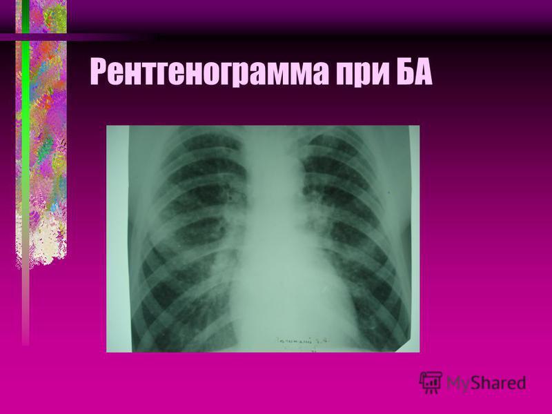 Рентгенограмма при БА