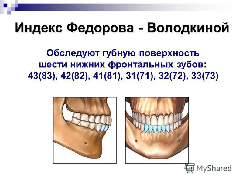 Индекс Федорова - Володкиной Обследуют губную поверхность шести нижних фронтальных зубов: 43(83), 42(82), 41(81), 31(71), 32(72), 33(73)