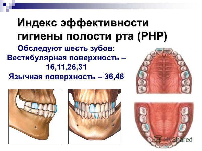 Индекс эффективности гигиены полости рта (PHP) Обследуют шесть зубов: Вестибулярная поверхность – 16,11,26,31 Язычная поверхность – 36,46