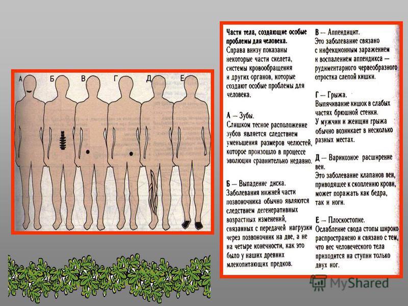 Отличия человека и человекообразных обезьян 1. Могут создавать орудия труда. 2. Позвоночник с естественными 4 изгибами, плоская форма грудной клетки, широкий таз, мощные кости нижних конечностей, лицевой отдел меньше головного в черепе, нет надбровны