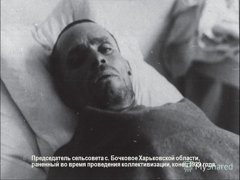 ò Председатель сельсовета с. Бочковое Харьковской области, раненный во время проведения коллективизации, конец 1929 года.