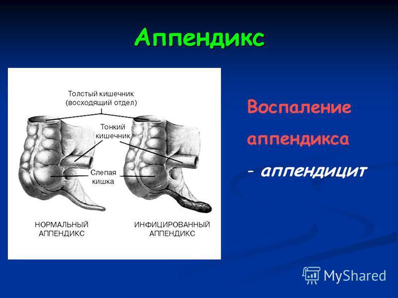 Аппендикс Воспаление аппендикса - аппендицит