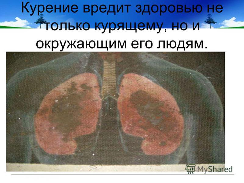 Курение вредит здоровью не только курящему, но и окружающим его людям.