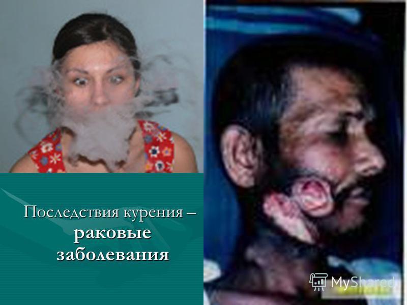 Последствия курения – раковые заболевания