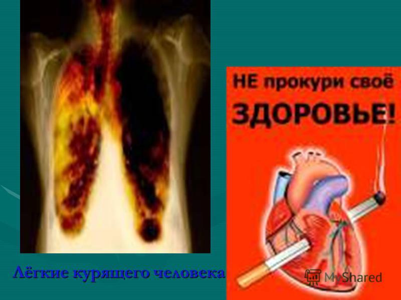 Лёгкие курящего человека