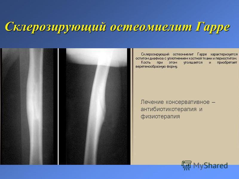 Склерозирующий остеомиелит Гарре Лечение консервативное – антибиотикотерапия и физиотерапия