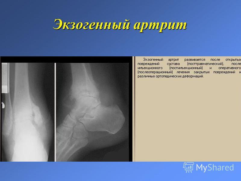 Экзогенный артрит