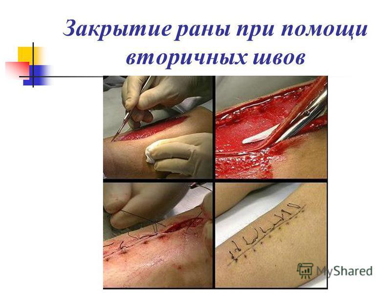 Закрытие раны при помощи вторичных швов