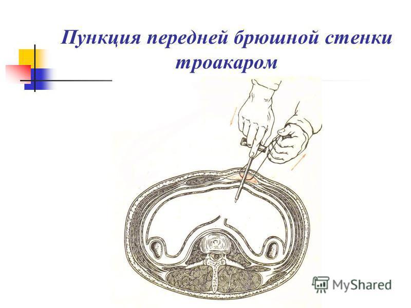 Пункция передней брюшной стенки троакаром